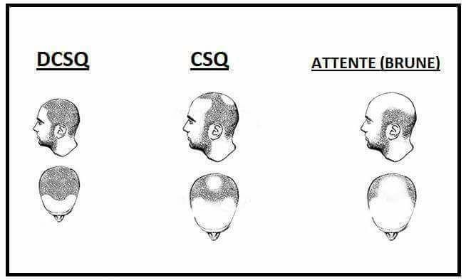 csq.jpg